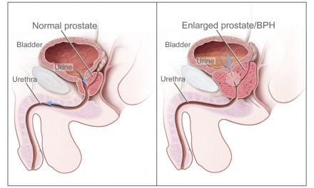 A natural prostate health supplement