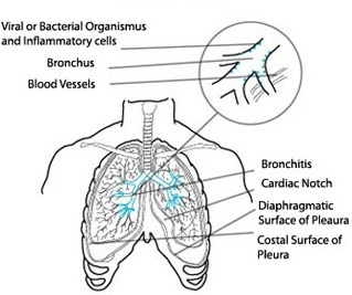 3 natural methods to aid against bronchitis