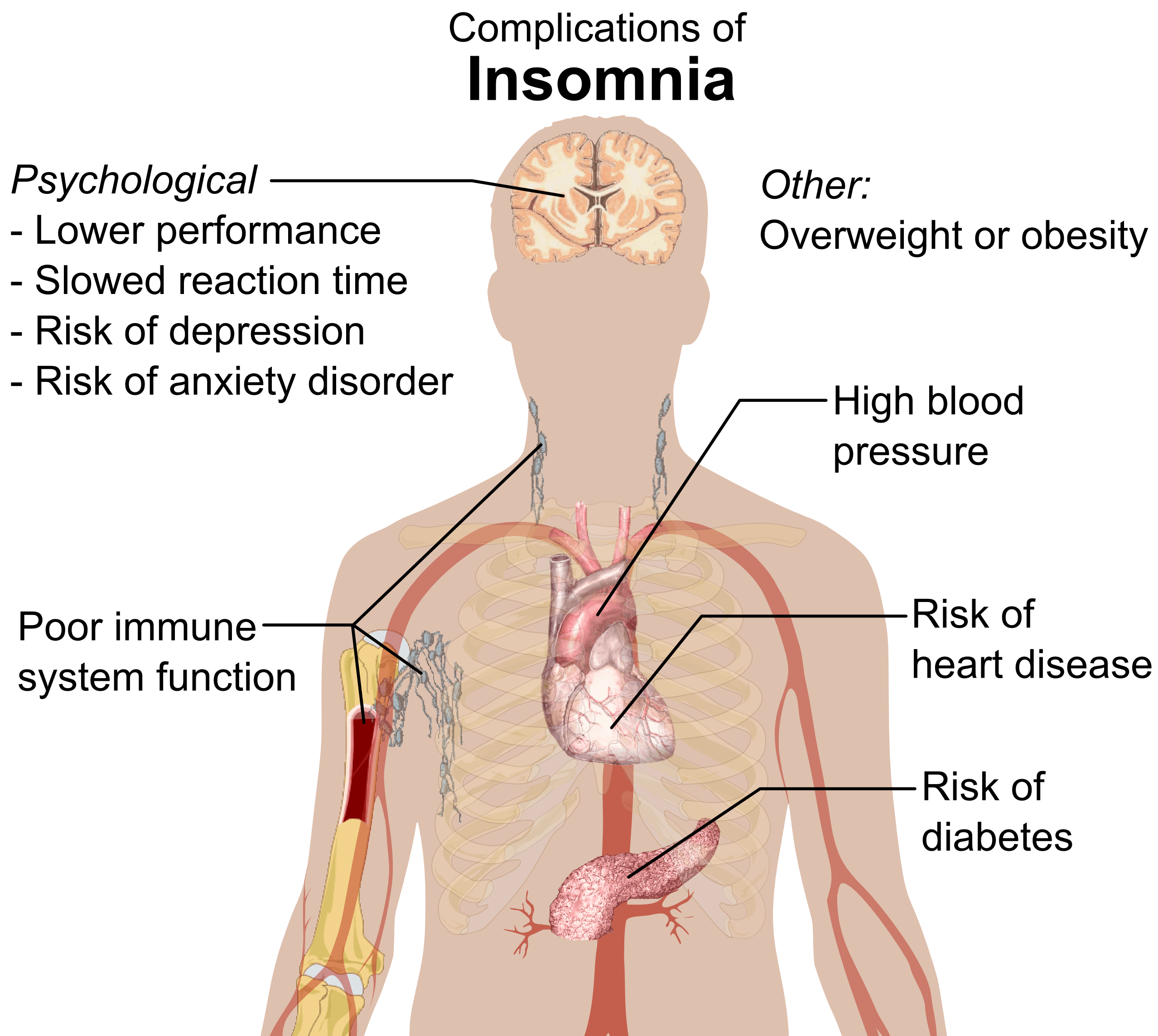 You will never look at Insomnia the same again