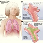 Top 4 Best Remedies for Bronchitis